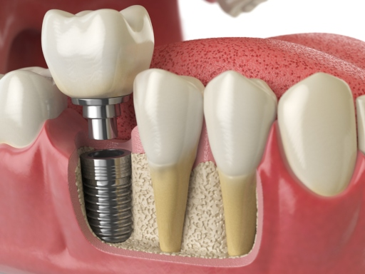 Top 5 Reasons to Choose Dental Implants - Ballard Dental Arts